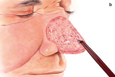 bipoláris koaguláció