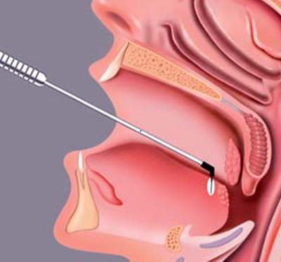 A nyelvgyök elektród alacsony-lapos profilja és erős szára lehetővé teszi a pontos beszúrást
