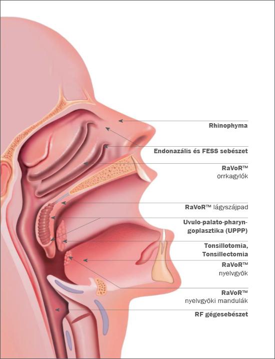 A rádiófrekvenciás sebészet talán legsokoldalúbban kihasználható területe a fül-orr-gégészet.